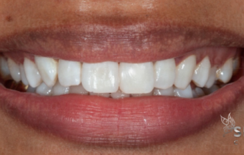front tooth gap closure bonding after