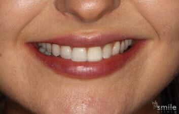 Smile makeover london dentist after