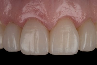 Crowded and Aged Teeth After