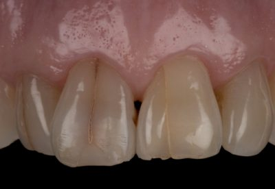 Crowded and Aged Teeth Before
