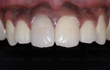 Dark incisor before