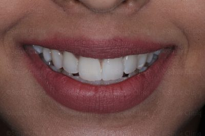 Discoloured central incisor after
