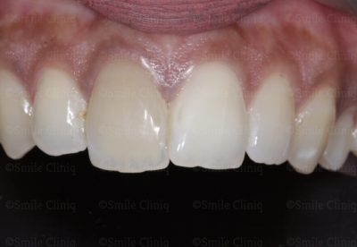 Discoloured central incisor before