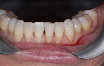 Lower teeth Black Triangle Treatment before