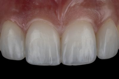 Small or spaced teeth After