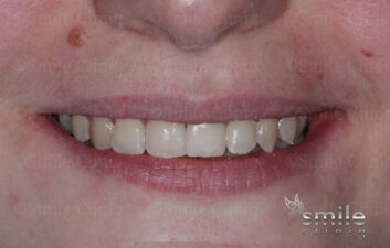 Braces finchley dentist after