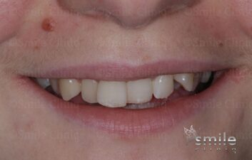 Braces finchley dentist before