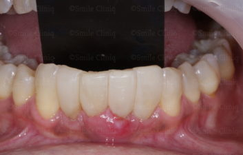 Bioclear lower arch after