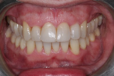bioclear composite bonding after