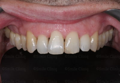 bioclear composite bonding before