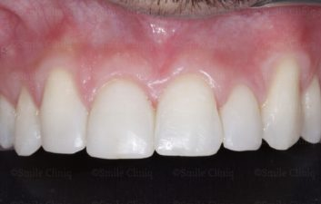 bioclear composite makeover after
