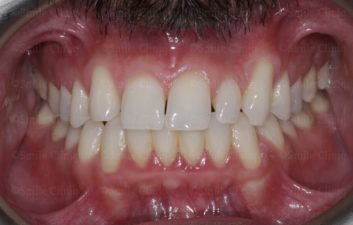 bioclear composite makeover before 1