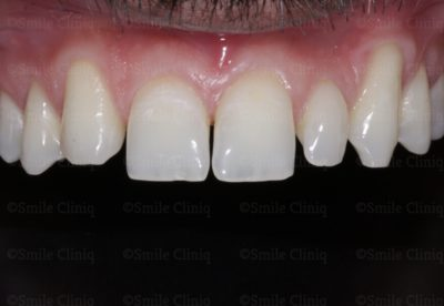 bioclear composite makeover before
