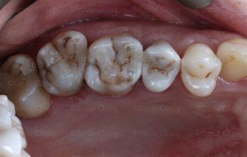 multiple amalgam removal after