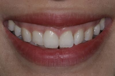 multiple bioclear after