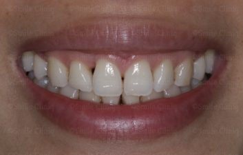 multiple bioclear before