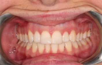 Fractured incisor 1 after