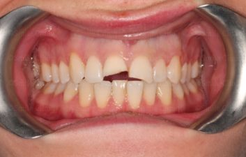 Fractured incisor 1 before