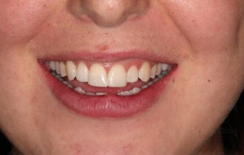 Fractured incisor after