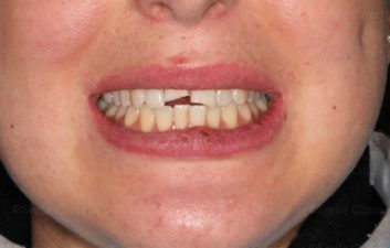 Fractured incisor before