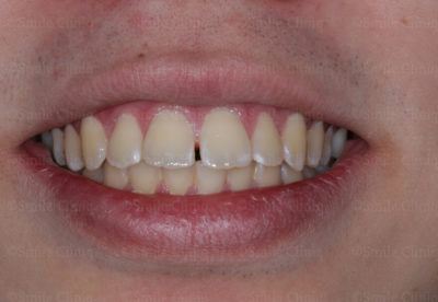 gaps in teeth before