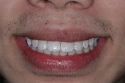 gaps in teeth after