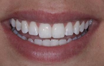 incisor midline bonding after