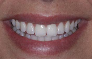 incisor midline bonding before