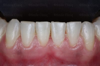 lower incisal crowding after