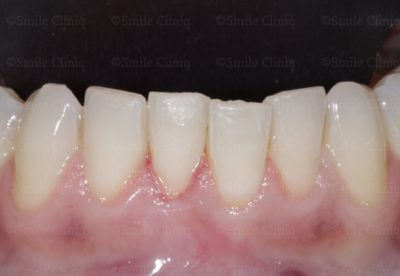 lower incisal crowding before