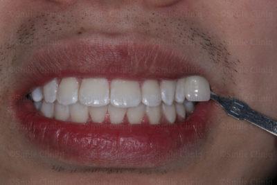 yellow teeth London after
