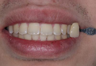 yellow teeth London before