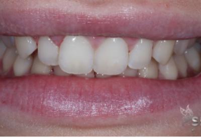 before invisalign and bonding london dentist