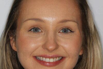 London dentist invisalign after