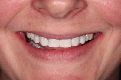 Mini Smile Makeover London after