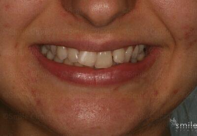 Smile makeover london dentist before