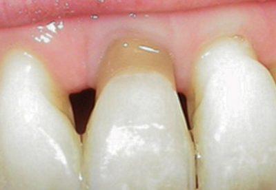 Gingival Veneer North London Dentist