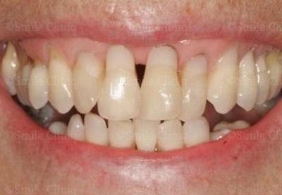 Gingival veneer London Dentist before