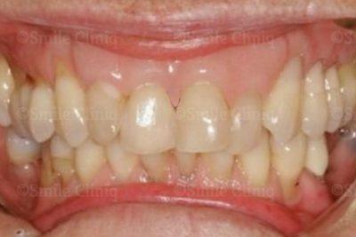 Gingival veneer London Dentist after