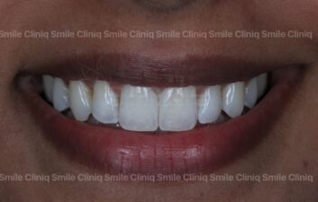 Black triangles smile cliniq london After