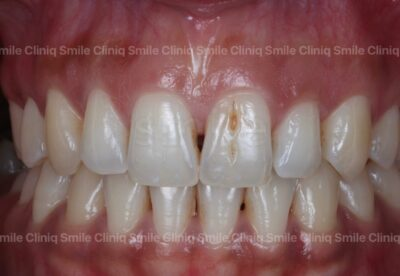 Black triangles smile cliniq london Before